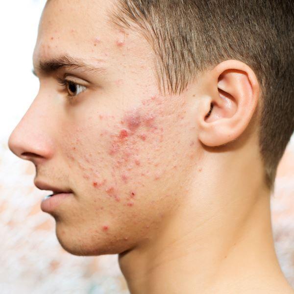Dermatólogo especialista en el tratamiento del acné | Madrid