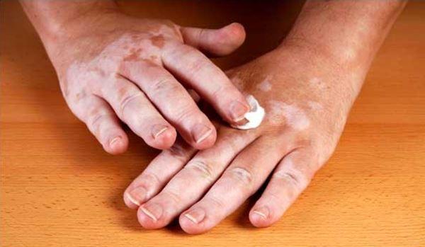 Consejos para pacientes con vitíligo