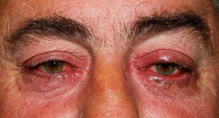 Rosácea ocular - Tipo IV