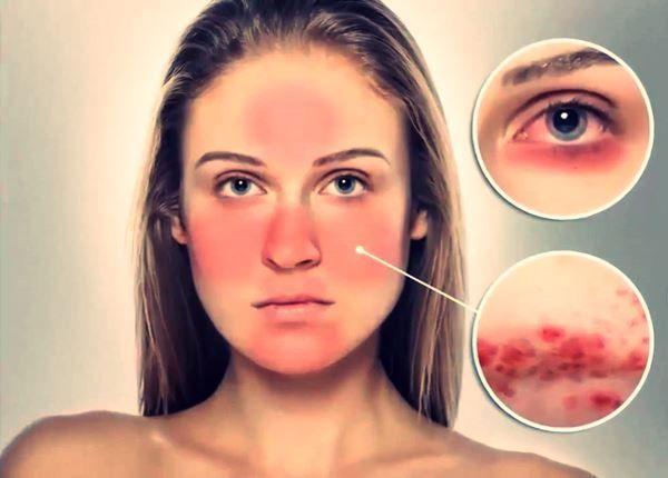 Dermatólogo especialista en el tratamiento de la rosácea - cuperosis | Madrid
