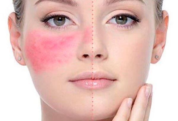Consejos para pacientes con rosácea - cuperosis