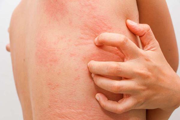 Repercusiones de la urticaria | Dermatólogo especialista en urticaria Madrid