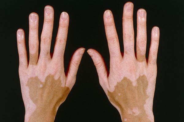 Vitíligo: causas y síntomas