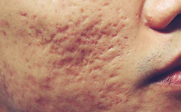 Cicatrices de acné | Tratamiento del acné en Madrid