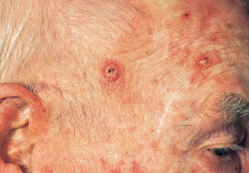 Carcinoma espinocelular (no melanoma)