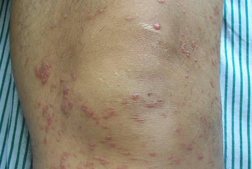 Micosis fungoide - Linforma cutáneo T
