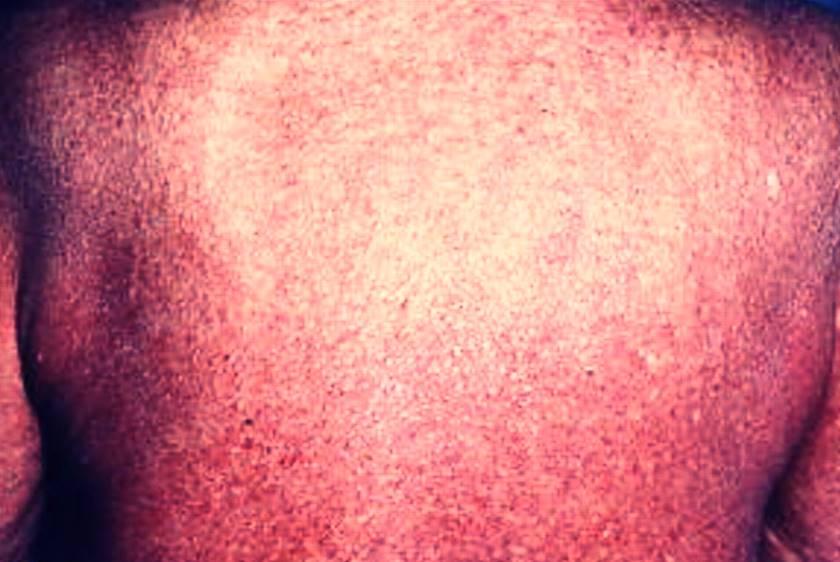 Síndrome de Sezary - Linforma cutáneo T