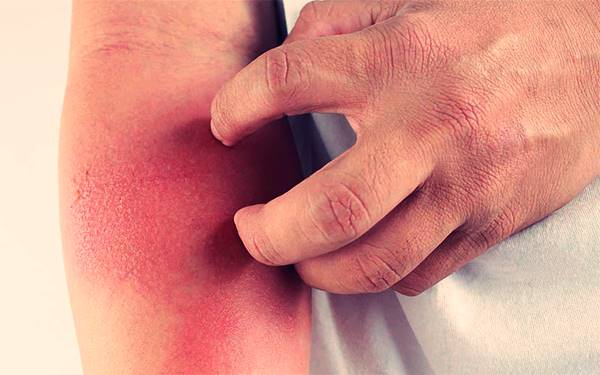 Dermatitis atópica | Síntomas
