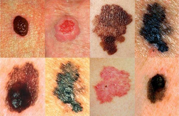 Dermatólogo especialista en cáncer de piel | Madrid