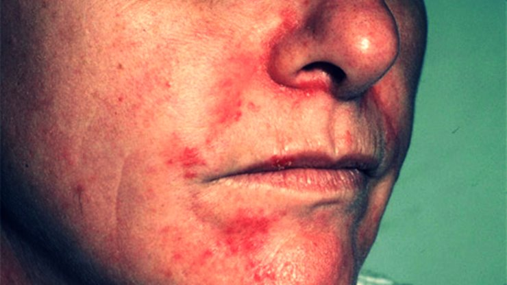 Dermatitis seborreica cara