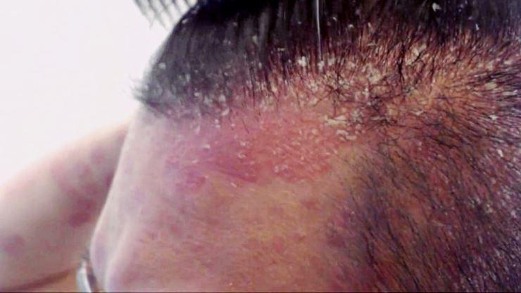 Dermatitis seborreica cuero cabelludo
