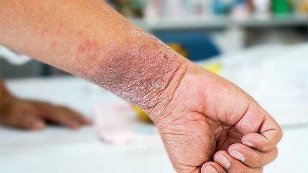 Diagnóstico dermatitis atópica | Madrid