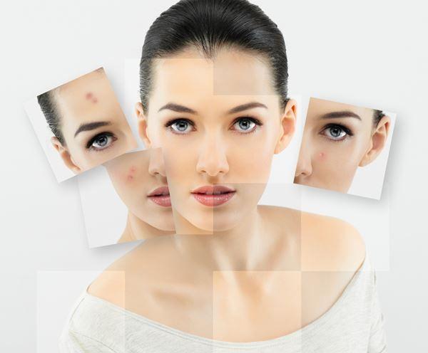 Dermatólogo especialista en peeling químico | Madrid