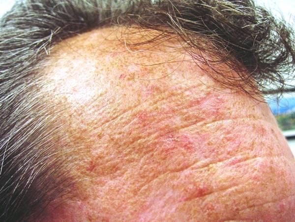 Dermatólogo especialista en queratosis actínica Madrid | Madriderma