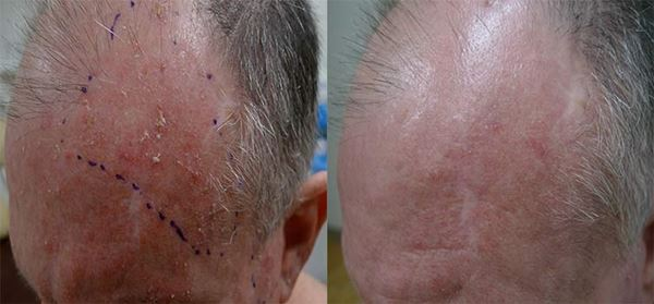 Dermatólogo especialista en el tratamiento del campo de cancerización en Madrid