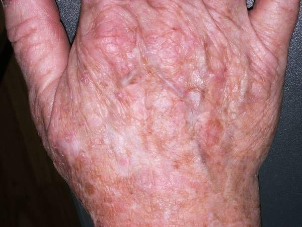 Queratosis actínica en dorso de las manos