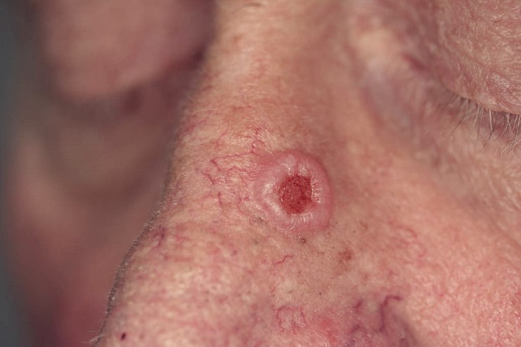 Carcinoma basocelular nodular