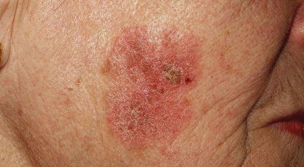 Dermatólogo especialista en enfermedad de Bowen | Madrid