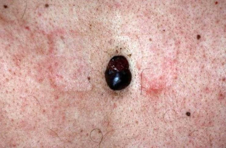 Melanoma nodular