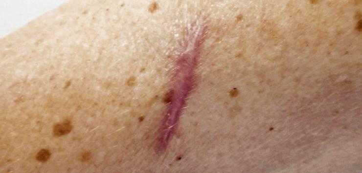 Cicatriz hiperpigmentada