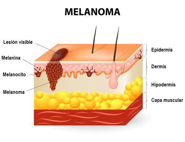 ¿Qué es el melanoma?