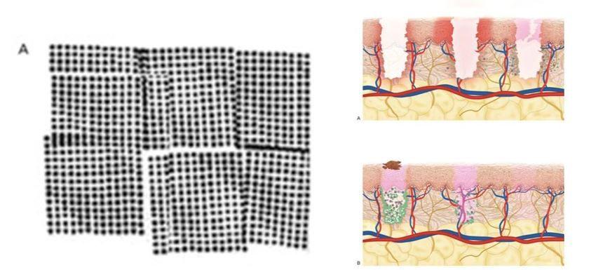 Microcolumnas de un láser fraccionado sobre la piel