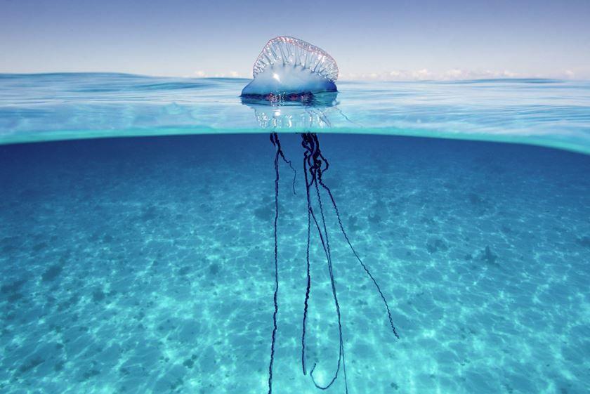 Hombre de guerra portugués - Tratamiento de picaduras de medusas