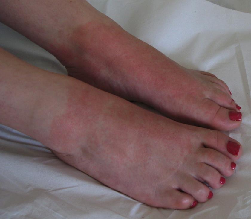 Enfermedades dermatológicas de los pies causadas por los zapatos: dermatitis alérgica
