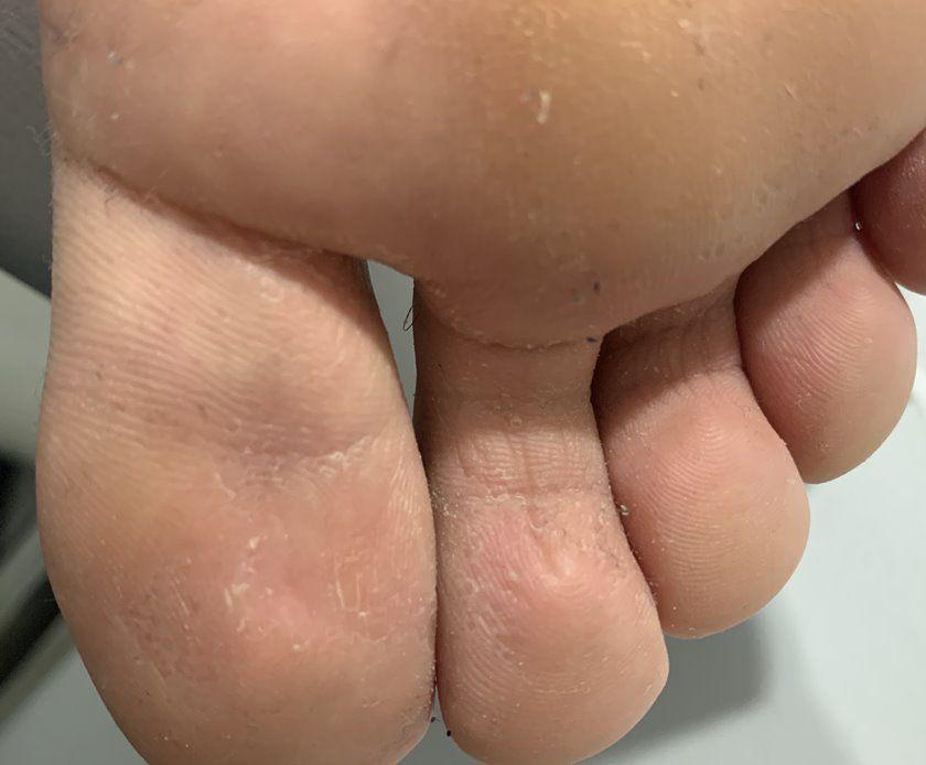 Enfermedades dermatológicas de los pies: dermatitis macerada