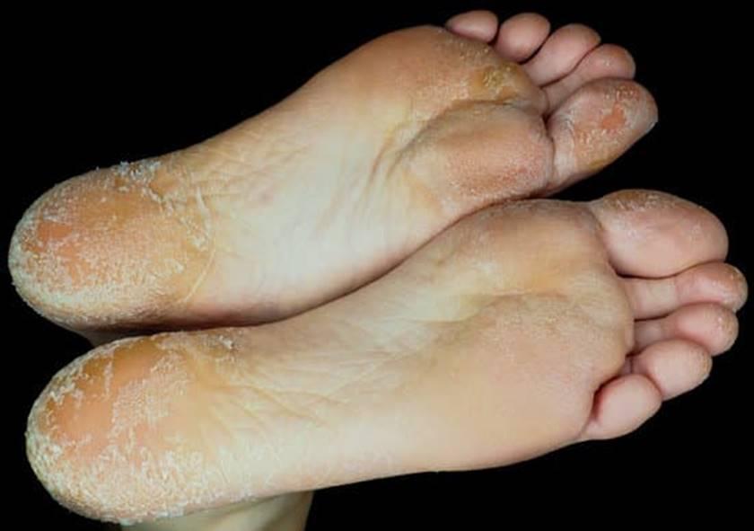 Enfermedades dermatológicas de los pies: pie de atleta