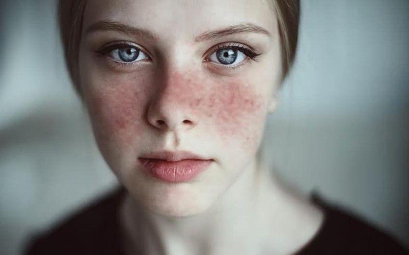 Lupus - 5 preguntas frecuentes
