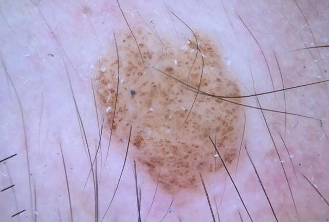Nevus intradérmico (dermatoscopia)