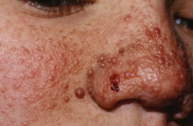 Angiofibromas