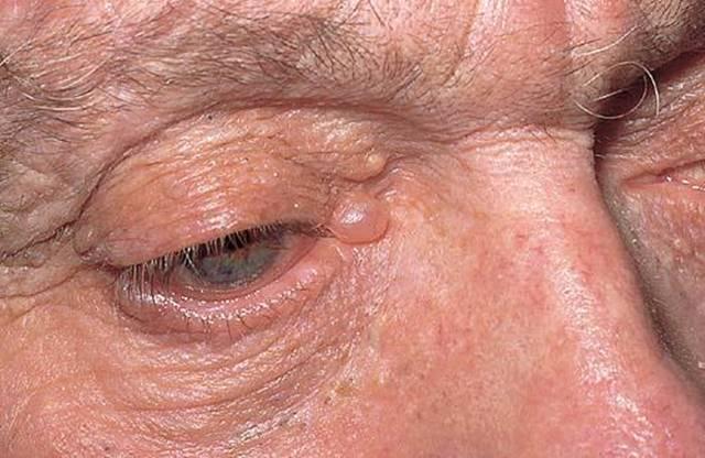 Hidrocistoma