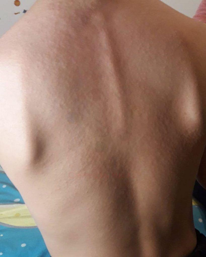 Exantema maculo-papular morbiliforme - Lesiones en la piel asociadas al COVID-19