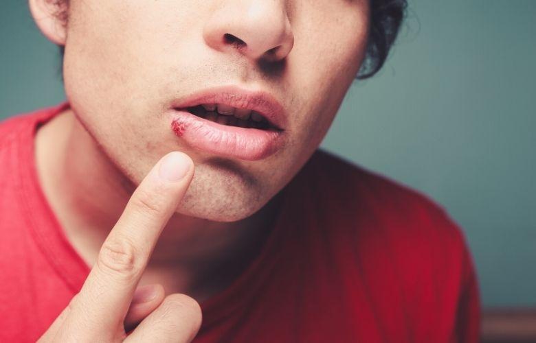 Herpes labial recurrente (calentura)