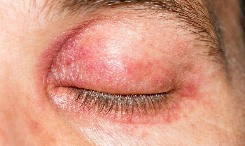 Ejemplo de alergia a los cosméticos: dermatitis de párpados.
