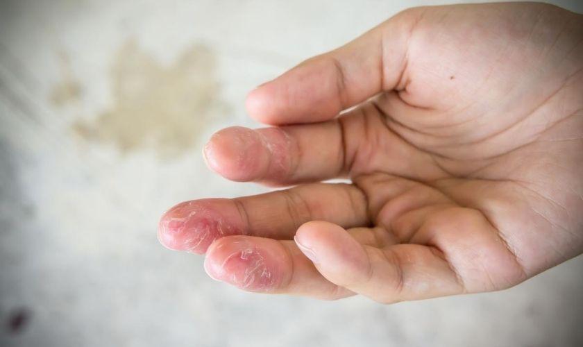 Alergia a los cosméticos - pieles intolerantes: dermatitis de contacto en dedos de la mano.