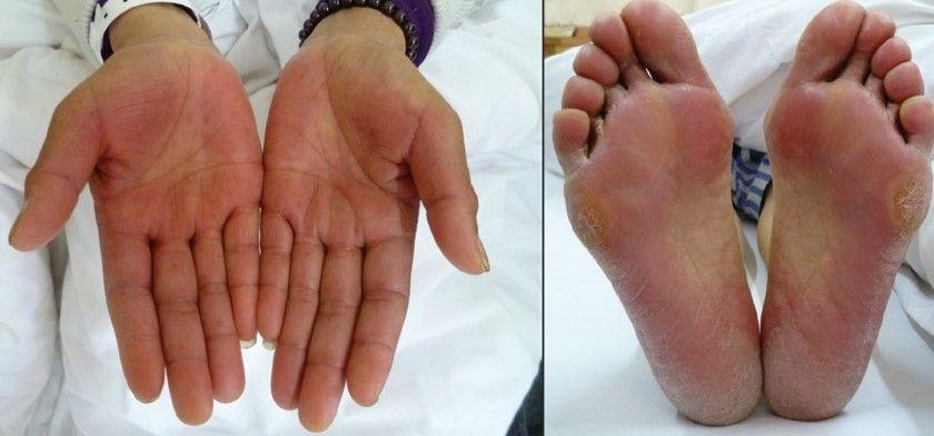 Cuidados de la piel durante la quimioterapia: eritrodisestesia palmo-plantar.
