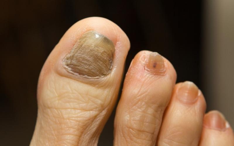 Hongos en las uñas. Posible efecto secundario de la quimioterapia.