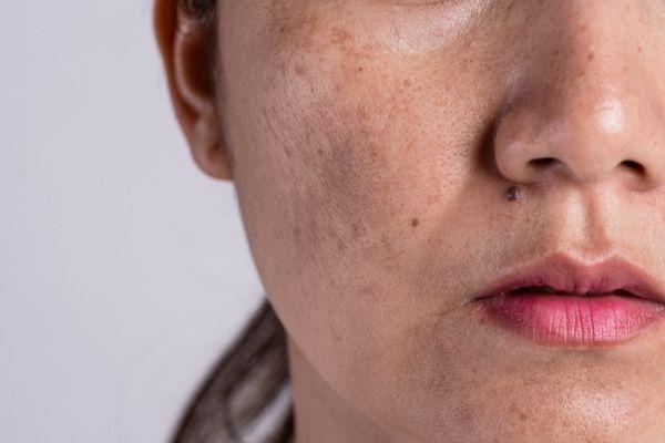 Dermatólogo especialista en el tratamiento del melasma - cloasma en Madrid