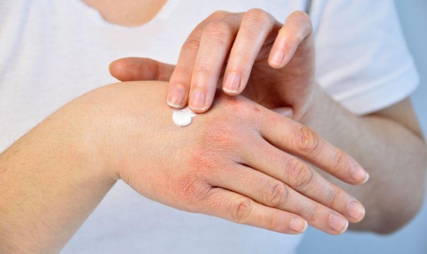 Cremas hidratantes en la dermatitis.