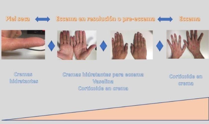 Cremas hidratantes en la dermatitis: dinámica de la piel en un eccema.